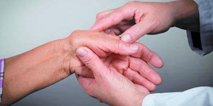 Arthritis Beitragsbild
