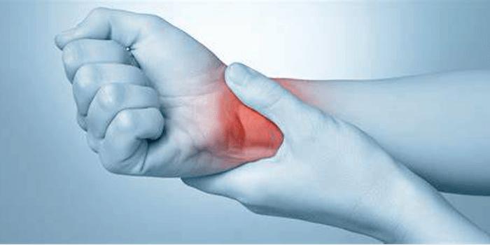 Rheumatoide Arthritis Beitragsbild