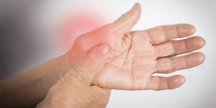 Rheumatoide Arthritis Symptome Verlauf