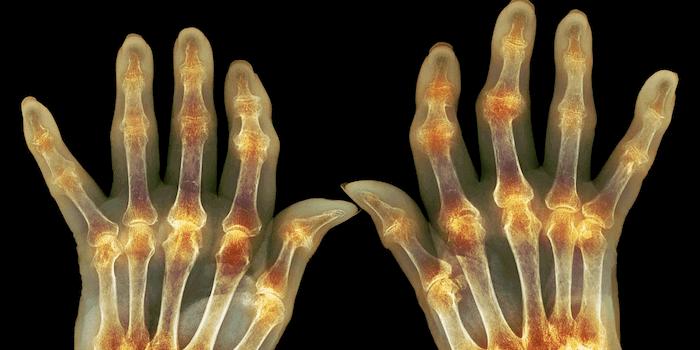 Um was handelt es sich bei Arthritis