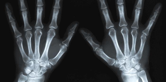 Um was handelt es sich bei Rheumatismus